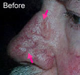 Facial veins picture before
