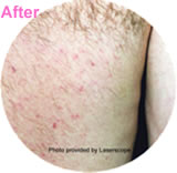 Hair removal laser treatment after photo