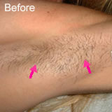 Underarm laser hair removal before photo