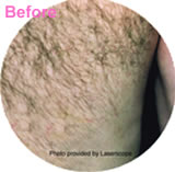 Hair removal laser treatment before photo