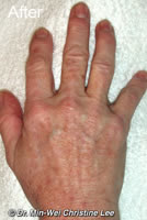 Laser skin rejuvenation  treatment of  hand after photo