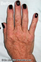 Laser skin rejuvenation  treatment of  hand before photo