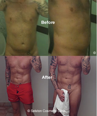 vaser lipo before after
