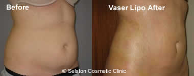 VaserMid Def before after