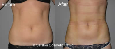 lipo before after