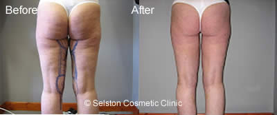 legs before & after