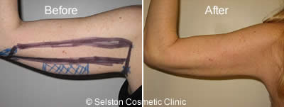 arms before & after treatment