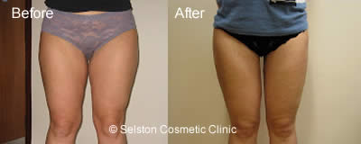 thighs before and after treatment