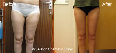 legs before and after treatment