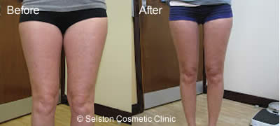 thighs before & after lipo