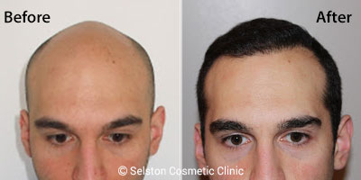 Getting Effective Hair Transplant Treatments That Are Affordable
