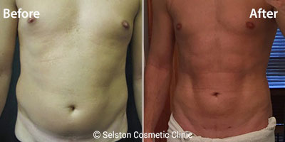 Vaser-lipo-male-abs