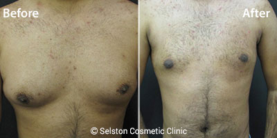 vaser-lipo-male-chest