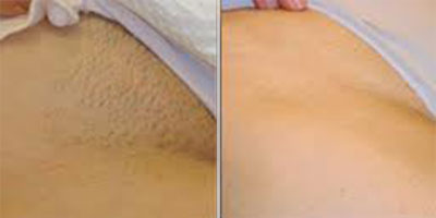 laser hair removalmansfieldderbynottinghamchesterfield