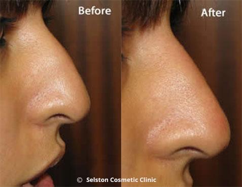 Non Surgical Rhinoplasty Nose Job