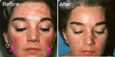 Rosacea Laser Mansfield Derby Nottingham Chesterfield