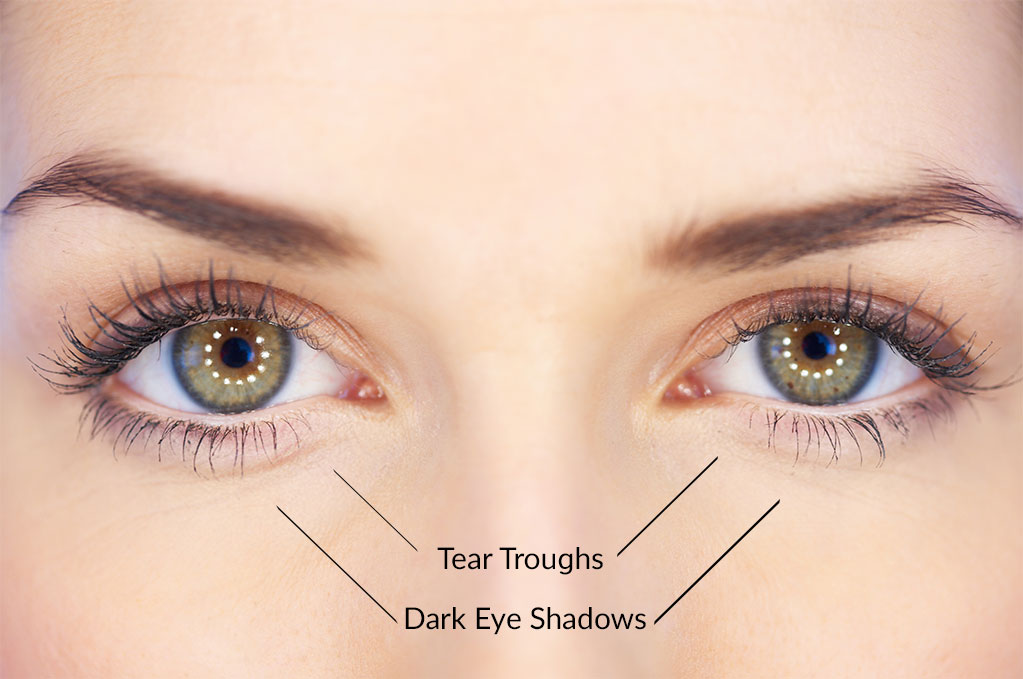 selston-cosmetic-clinic-tear-troughs-dark-eye-shadows