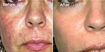 Treatment for facial spider veins