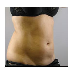 Liposuction Surgery Tumescent Midlands Uk